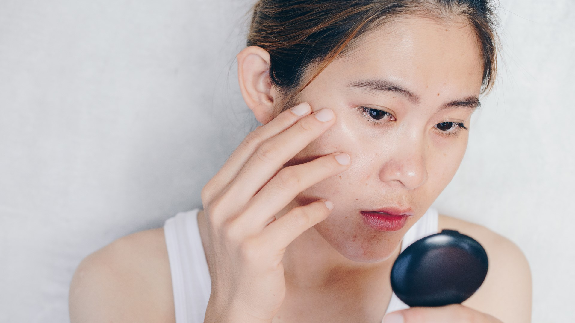 How To Manage Acne-Prone Skin