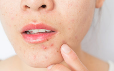 Dry acne-prone skin